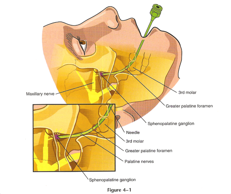 Palatine Forman Approach to Sphenopalatine Ganglion Block