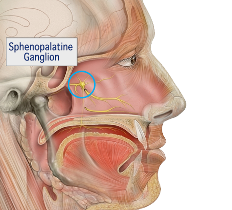 Sphenopalatine Ganglion Nerve Block for Migraine & Headache Relief
